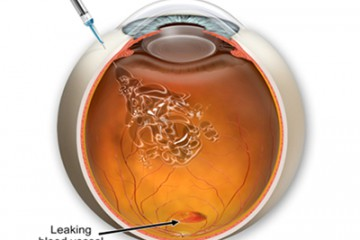 Cirugía Avastin Intravítreo, Centro oftalmológico Luis Sócola Vela