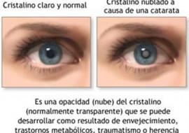 Cirugía Catarata, Centro oftalmológico Luis Sócola Vela