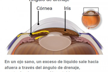Cirugía Glaucoma, Centro oftalmológico Luis Sócola Vela