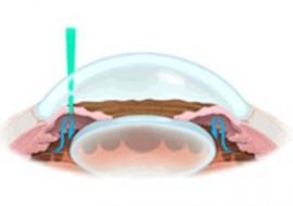Procedimiento Iridotomía, Centro oftalmológico Luis Sócola Vela