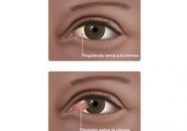 Cirugía Pterigión, Centro oftalmológico Luis Sócola Vela